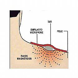 emplasto magnetico II